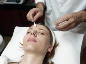 Acnebehandeling